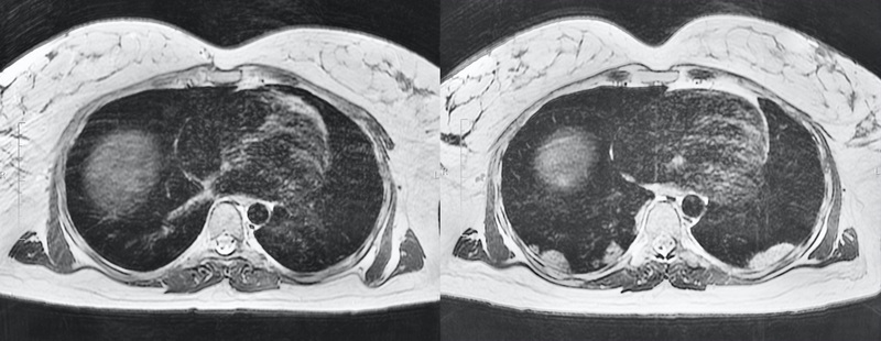 Chest MRI of a pregnant woman with COVID-19 pneumonia