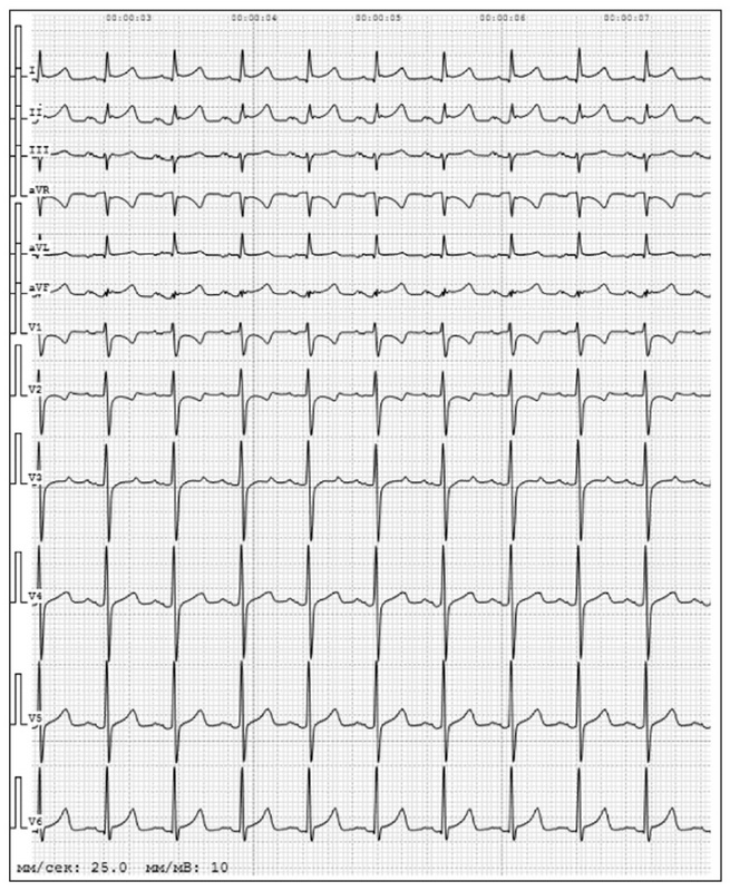 Electrocardiographic findings in COVID-19: analysis of tele-ECGs in Moscow ECG IT Center